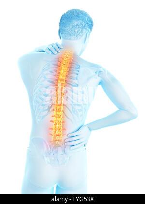 3D-gerenderte Medizinisch genaue Abbildung eines Mans schmerzhaft zurück - Stockfoto