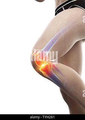 3D-gerenderte Medizinisch genaue Abbildung eines schmerzhaften Knie - Stockfoto