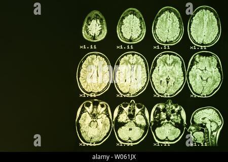 Mrt des Gehirns auf einem schwarzen Hintergrund mit gelber Hintergrundbeleuchtung. Links Platz für Werbung Beschriftung - Stockfoto