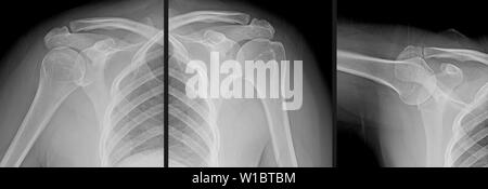 X-ray Serie eines menschlichen Schultergelenk, der humerus Knochen des Oberarms, clavicula (schlüsselbein), skapulier (schulterblatt) und Brustkorb. - Stockfoto