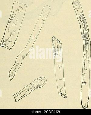. La práctica de la medicina; un libro de texto para profesionales y estudiantes, con especial referencia al diagnóstico y tratamiento. Fig. 121.—Fig. Epitelial. 122.—pus Cast.casts y GranularFatty Renal CEUs. 123.—yesos de sangre—{AfterWhiltaker). La sustancia básica de los esguinces de sangre es lo más probable la fibrina de la sangre.Si el epitelio está firmemente fijado a la membrana basal del tubo y permanece detrás cuando el yeso sale, o si el tubo se entirelybereft del epitelio, entonces es el yeso un hialine (Fig. 124) o sin estructura.