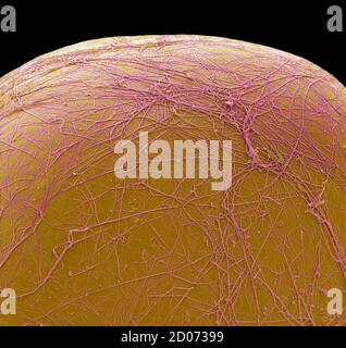 Célula de grasa. Micrografía electrónica de barrido en color (SEM) de parte de una célula que almacena grasa (adipocitos). Las células grasas son uno de los tipos de células más grandes de la h.