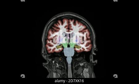 Imágenes por resonancia magnética del cerebro en la secuencia codificada por color del plano coronal utilizada para el diagnóstico de insuficiencia de memoria y enfermedad de Alzheimer. IRM cerebral