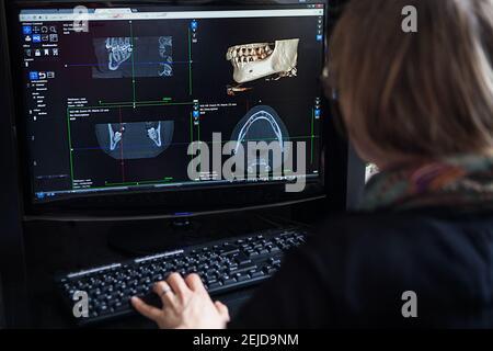 Reconstrucción 3D a partir de una imagen de escáner de la mandíbula de un paciente para una impresión 3D personalizada.