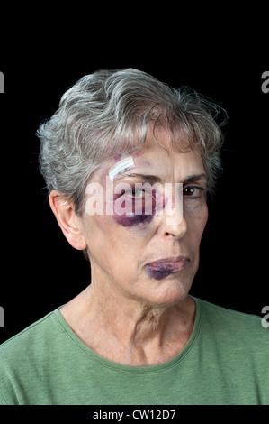 Una anciana mujer golpeada y herida muestra los problemas que existen con la violencia doméstica
