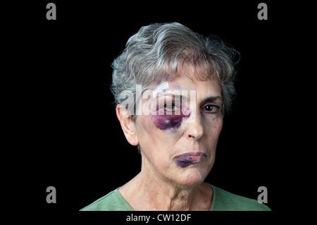 Una anciana abuela golpeados con puntos de sutura, un ojo negro y un labio de grasa.