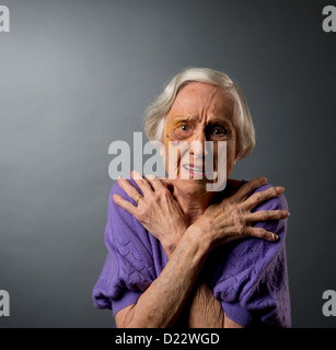 Abusó de mujer mayor con ojo negro.