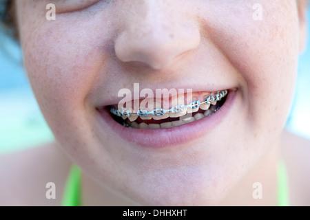 Chica con abrazaderas dentales