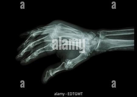 Película X-ray mano : Fractura oblicua en 3º y 4º hueso metacarpiano ...