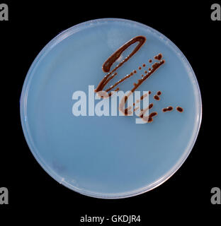Placas de Petri con colonias de microbios y esporas de hongos