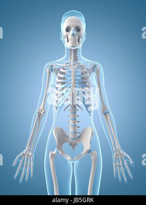 3D Render de un esqueleto femenino médicos con una pierna rota el ...