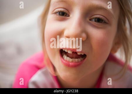 Retrato de chica con el diente que falta mirando a la cámara boca abierta