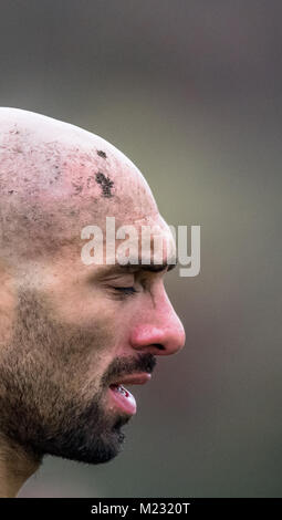 Lesiones en la cabeza en un jugador de rugby amateur.
