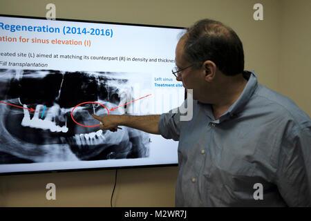Dr. Shai Meretzki, Globus Biogroup CEO y fundador explica la reconstrucción del tejido óseo deteriorado en la sede principal de la biotecnología basada en Israel Biogroup Bono empresa que aplica una tecnología innovadora para suministro de ingeniería de tejidos injertos de hueso viable ubicado en Matam hi-tech Park en Haifa, Israel. Biogroup bonificación se presenta en público con su exclusiva tecnología mundana permitiendo el crecimiento de tejido humano vivo y activo fuera del cuerpo con buenos resultados de ensayos clínicos en los cuales los pacientes dieron lab-crecido tejido óseo a partir de células de grasa del propio paciente.