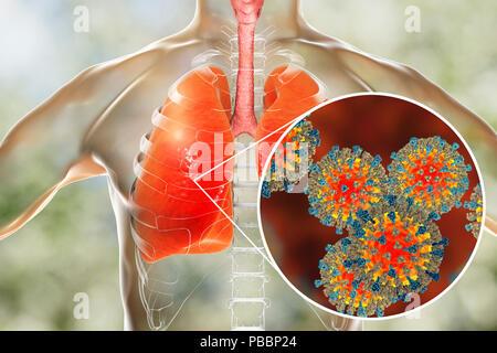 La neumonía causada por el virus del sarampión, equipo conceptual ilustración. El virus del sarampión, desde el grupo de virus morbilivirus, consta de un ácido ribonucleico (ARN) núcleo rodeado por una envoltura tachonada con proteínas de superficie hemaglutinina-neuraminidasa y proteína de fusión, que se utilizan para conectar y penetrar una célula huésped. El sarampión es una erupción pruriginosa altamente infecciosa con fiebre. Afecta principalmente a los niños, pero un ataque normalmente da a lo largo de la vida la inmunidad. La neumonía es una de las complicaciones comunes del sarampión. Foto de stock