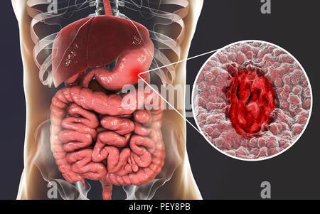 Úlcera de estómago. La anatomía del cuerpo. Ilustración Ilustración ...