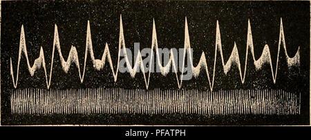 . Dictionnaire de physiologie. Fisiología. GRAPHIQUE (Méthode). 861 La figura 126 représente photograrame obtenu nu par v. Kries (courbe de la vitesse du sang). La courbe inférieure de cette figura représente le phologramme cbronogra- phique ; il corresponden oscilaciones aux d'une flamme animée d'oscilaciones synchrones avec celles d'un diapasón. Pour avoir l'indicación du temps, en peut aussi procéder autrement. Par ejemplo,. FiG. 120. Courbes de la vitesse du sang et tracé chronograpliiquo (V. Krie.s). En faisant qu'un diapason ou chronomà ONU¨tre quelconque agisse sur une cojo qui ob
