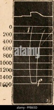 . Dictionnaire de physiologie. Fisiología. GRAPHIQUE (Méthode). músculo est donnée par le Díaz©placement du petit levier (HHI) dont l'extrés'abaisse mité d'autant plus que la l'orce musculaire de tracción est plus grande. Le Mouvement d'abaissement du petit levier est enregistré par  une pointe inscrivante (s) sur cylindre ONU sur lequel enregistreur vertical, se trouve tracée d'avance l'échelle de tensión, en exerrant obtenue sur le grand levier (HH) des tractions connues à l'aide de poids. Sur le myoto ningún gramo de la figura 5 en voit à la partie supérieure le tracé du grand levier; à l