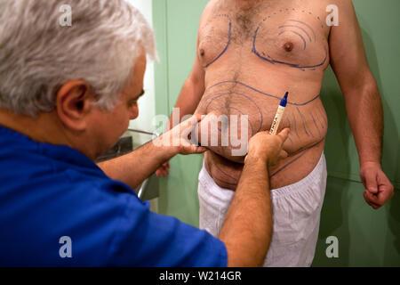Diciembre 7, 2011 - El Cairo, Egipto - Un cirujano plástico egipcio marca un paciente con obesidad para liposucción abdominal en El Cairo. El paciente es un egipcio de 41 años que pesa 202 kg y mide 164 centímetros de alto, con un IMC de 34. Doctor Wilson elimina aproximadamente 7 litros de grasa. La liposucción no es un tratamiento para la obesidad. No es razonable utilizar la liposucción como una técnica quirúrgica para la pérdida de peso debido a los riesgos para la salud. Crédito de la foto: Benedicte Desrus