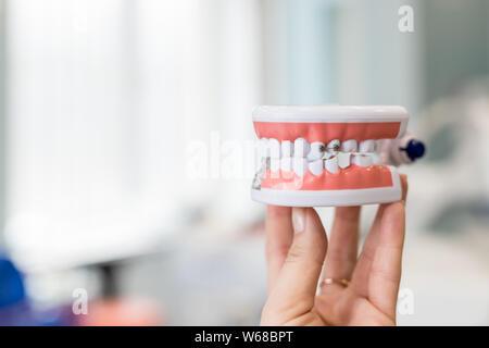 Modelo de mandíbula humana con alambre tirantes fijados. Presentación oficina dental y ortodoncia, aislados en la herramienta mano femenina.metal y cerámica de llaves