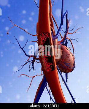 Vaisseaux sanguins, cœur, artère illustré avec une section, le rendu de haute qualité avec des textures originales et de l'illumination globale, contraction de sang Banque D'Images
