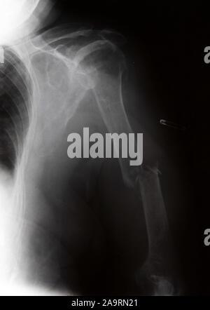 X-ray montrant une fracture des os humoristique dans un bras humain Banque D'Images