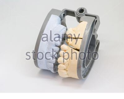 Moulage dentaire modèle en plâtre de gypse stomatologie mâchoires humaines laboratoire mentions légales Banque D'Images