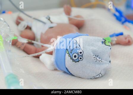Nouveau-né avec soutien ventilatoire et accès veineux, en unité de soins intensifs, à l'hôpital de Chidren. Guayaquil. Équateur