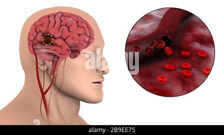 Illustration médicale d'un AVC hémorragique dans le cerveau. Banque D'Images