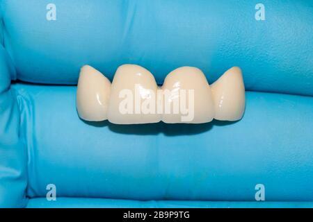 prothèse en céramique. Pont céramique-métal des dents humaines dans les mains du dentiste en gants bleus. Gros plan. Macro.