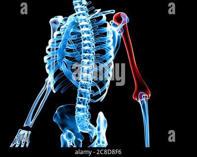 3d a rendu médicalement l'illustration précise d'un squelette avec bras douloureux. Banque D'Images