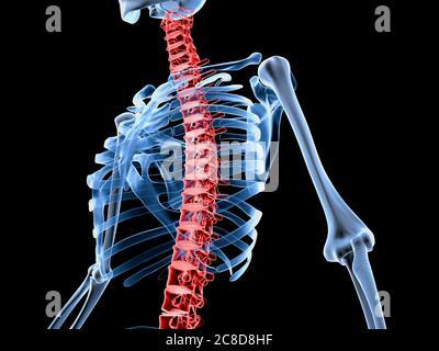 3d a rendu médicalement l'illustration précise d'un squelette avec une colonne vertébrale douloureuse. Banque D'Images