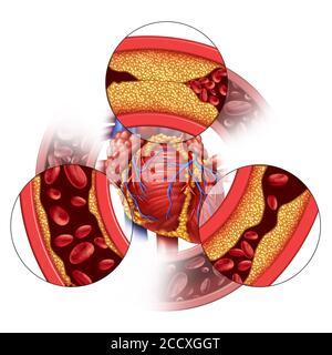 La maladie des artères cardiaques et le concept médical coronaire comme formation progressive de plaque entraînant l'obstruction des artères et l'athérosclérose comme anatomie humaine. Banque D'Images