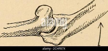 . Atlas et épitome du traumatique . Figure 85.—traction sur l'avant-bras. Figure 86.—flexion. 190 FRACTURES ET DISLOCATIONS. PLAQUE 39.dislocation extérieure de l'avant-bras et séparation du condyle interne.—Fig. 1.—spécimen anatomique d'une dislocationde ce type sur le bras droit ; vue antérieure. Le déplacement latéral des os de l'avant-bras est très perceptible. L'articularsurface de l'ulna s'articule avec la partie latérale du trochleaet du capitulum humeri ; la tête du rayon est à l'extérieur de l'articulation. Le condyle interne séparé est fixé à la cubitus par lainterne Banque D'Images