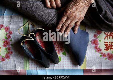 L'ancienne 'femme de confort' chinoise Zhang Xiantu montre ses pieds liés à un journaliste dans sa maison dans la ville de Xiyan, province du Shanxi, Chine, le 17 juillet 2015. € œComfort femme? Est l'euphémisme japonais pour les femmes qui ont été forcées à la prostitution et victimes d'abus sexuels dans des maisons de prostitution militaires japonaises avant et pendant la Seconde Guerre mondiale. Lorsque des soldats japonais se sont éclabourés dans sa maison pour recueillir les vivres de sa famille, Zhang, 15 ans, ne pouvait pas s'échapper parce que Shé avait les pieds reliés. Selon les renseignements de la Commission d'enquête de China sur les faits sur lesquels les femmes de confort sont victimes, qui sont fondés
