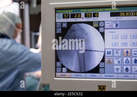un médecin opère sur une épaule dans une opération la salle et au premier plan sont des appareils à rayons x. Banque D'Images