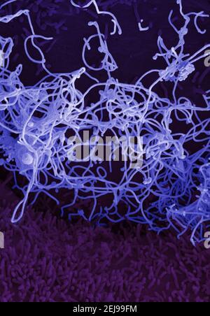 Virus Ebola provenant d'un échantillon de sang du mali