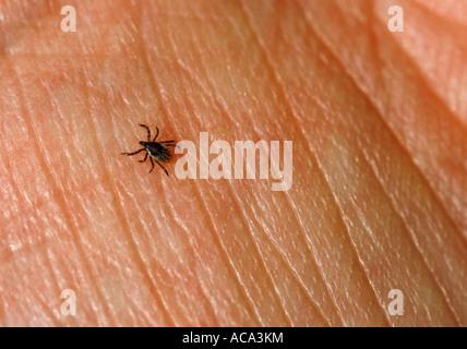 Ricin tique (Ixodes ricinus) sur la peau humaine Banque D'Images