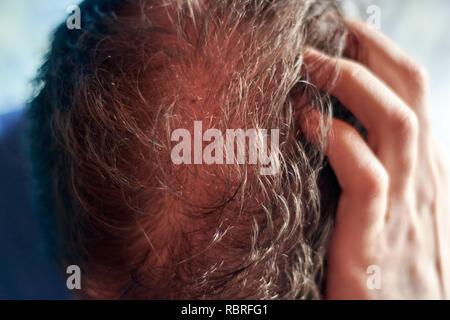 Le cuir chevelu de young caucasian man vu de dessus et en mettant en évidence un problème de perte de cheveux. Banque D'Images