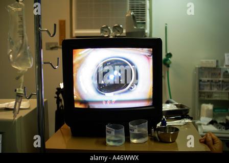 La chirurgie de l'œil (cataracte) sur un monitore en bloc opératoire, Recife, Brésil