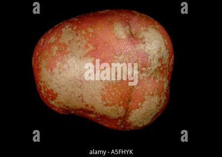 La tache argentée Helminthosporium solani sur la peau des tubercules de pommes de terre de Desiree rouge Banque D'Images
