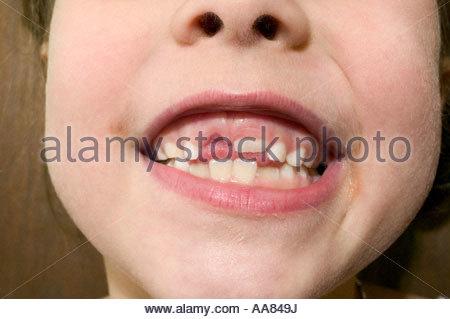 Jeune fille montrant outre de lacune dans les dents Banque D'Images