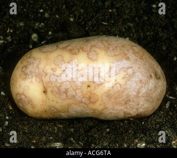 La tache argentée Helminthosporium solani sur la peau du tubercule de pomme de terre Banque D'Images