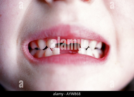 Une jeune fille en montrant son front manquant deux dents supérieures et inférieures Banque D'Images