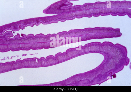 Les cellules épithéliales de l'intestin d'Ascaris 18