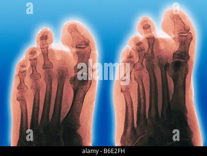 Orteil amputé. Frontal de couleur (à gauche) et obliques (à droite) des rayons x d'un pied d'un diabétique, montrant Banque D'Images