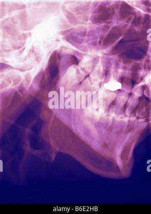 Mâchoire inférieure à la normale. Profil de couleur X-ray de la mandibule (mâchoire inférieure). Banque D'Images