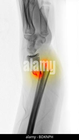 X-ray montrant un radius et cubitus déplacées gravement fracture de l'avant-bras d'une jeune fille de 12 ans Banque D'Images