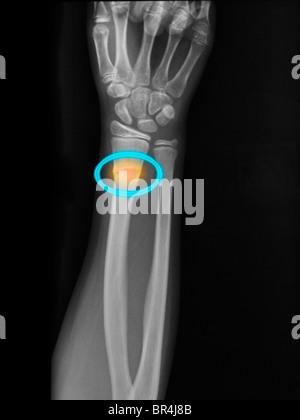 Fracture du radius distal dans une jeune fille de 10 ans Banque D'Images