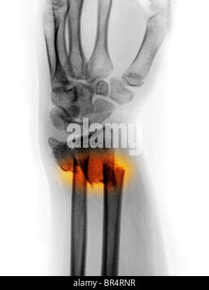 Radius et cubitus déplacées fracture de l'avant-bras d'une jeune fille de 12 ans Banque D'Images